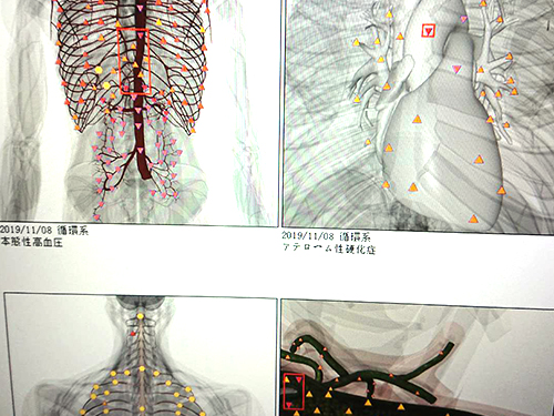 熊本でメタトロン測定のことなら | セッション3